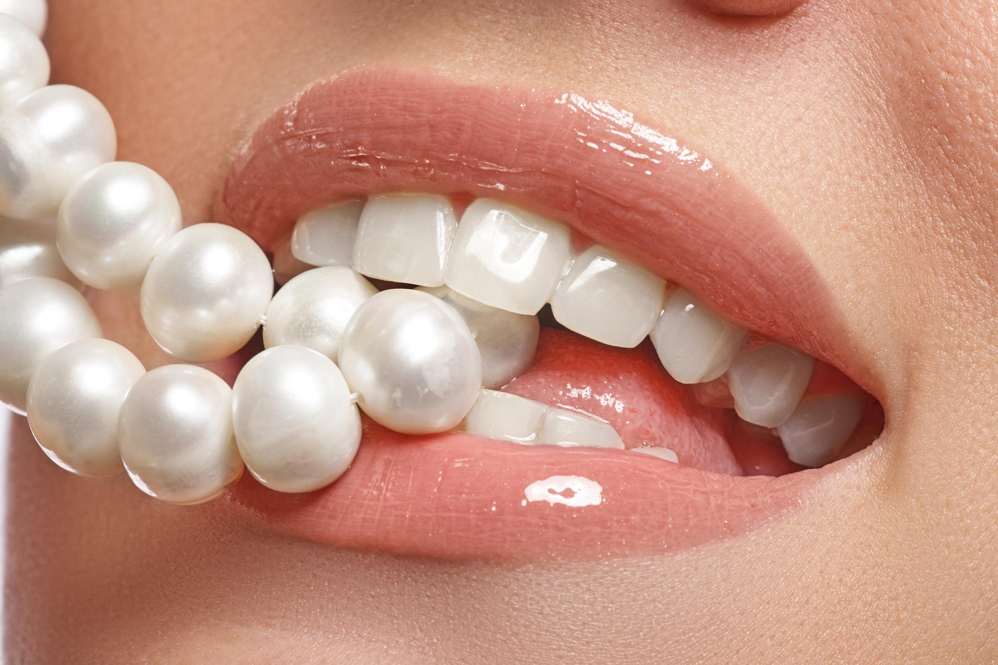 ワイヤーを使ってすばやく矯正!抜歯の必要がないMEAW矯正